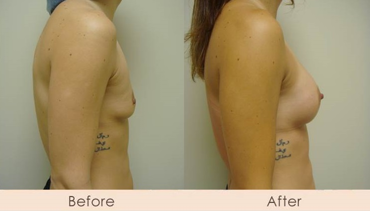 Scarless Breast Enlargement, 200cc - 240cc Under Muscle
