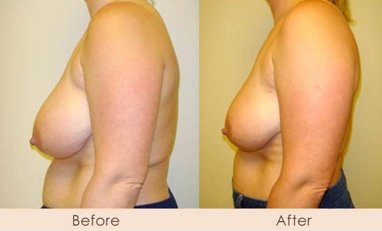 Business Atlanta breast reduction scarless consider