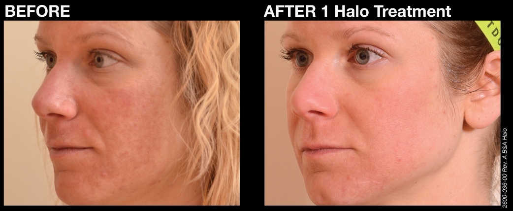 halo before and afters 4 final Introducing Halo: The Celebrity Secret to Great Healthy Skin with No Down Time