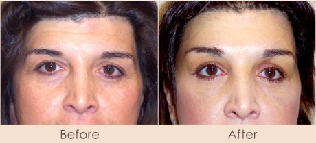 Brow Lift Dr. Gray 460x209 Have You Considered a Brow Lift?