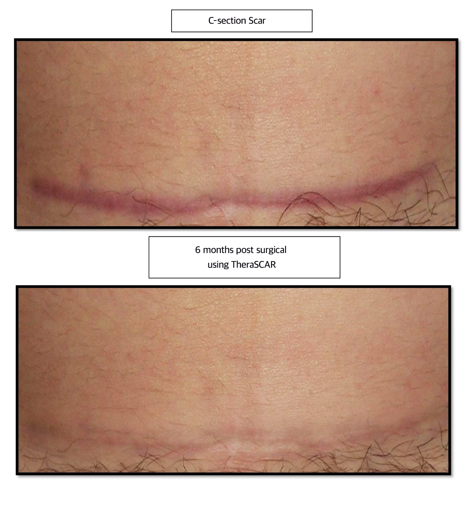 TheraSCAR • Michigan Cosmetic Surgery Center | A New You