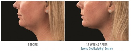 Double Chin Coolsculpting 02