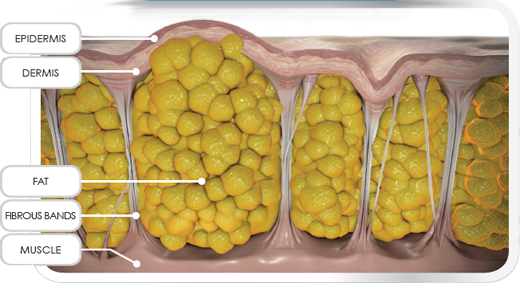 Structure-of-Cellulite