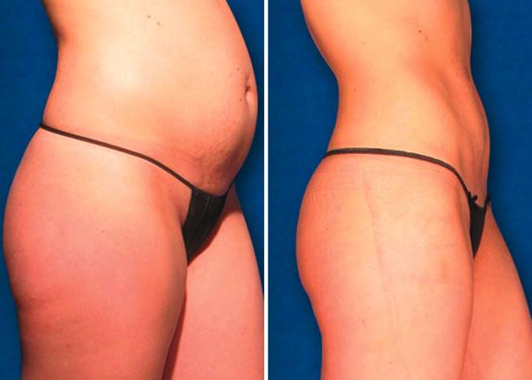 ZERONA® Body Slimming