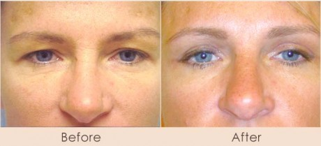 Dr-Gray-Eyes-Before-After