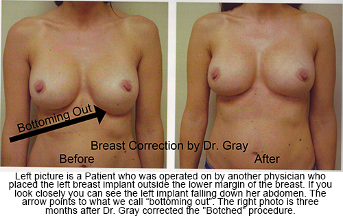 Botched-Dr-Gray-Breast-Correction-01