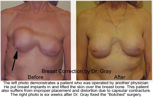 Botched-Dr-Gray-Breast-Correction-02