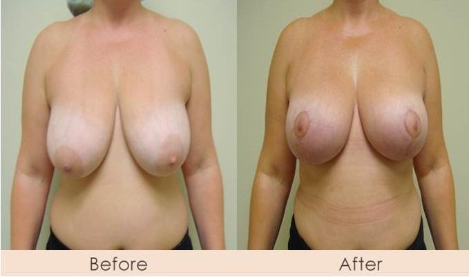 Breast Lift - Mastopexy
