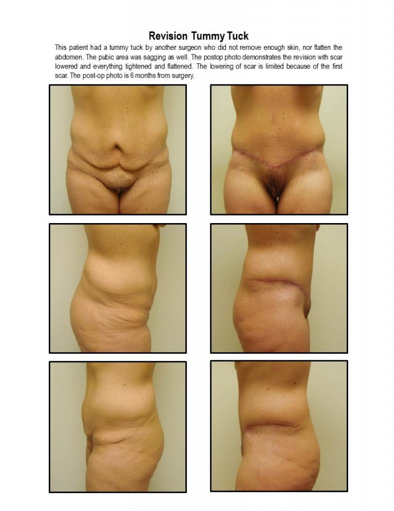 Tummy Tuck Correction By Dr. Michael Gray (Botched)
