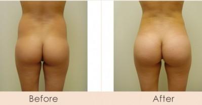 Brazilian Butt Lift Butt Enhancements On the Rise
