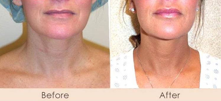 Liposuction of Neck
