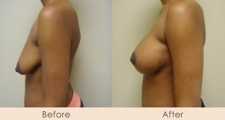 Breast Lift with Scarless Breast Implants, Left 325 - 325cc  Right 325 - 400cc