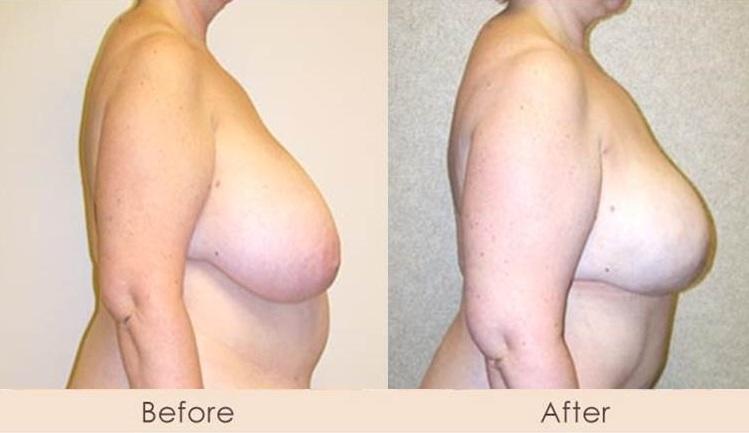Lipo of Breasts