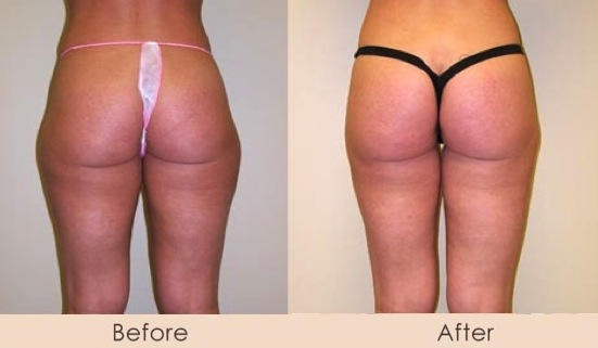 Liposuction of Outer Thighs