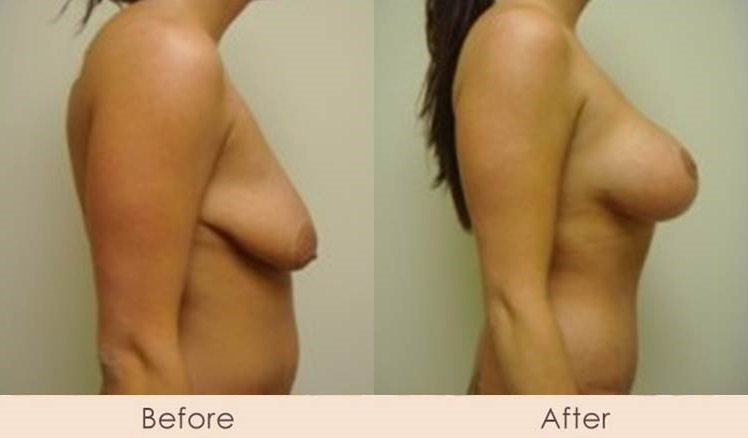 Breast Lift with Breast Implants