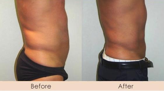 Male Liposuction of Abdomen and Waist