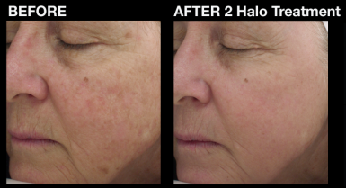 halo_before_and_after