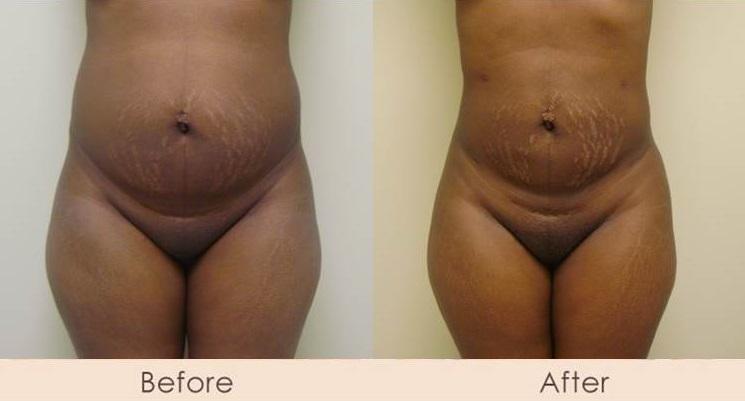 Liposuction of Abdomen