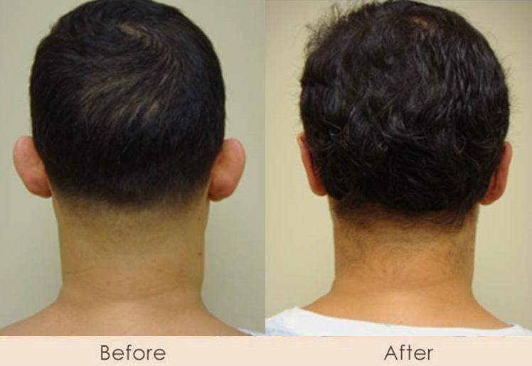Ear Reconstruction - Otoplasty