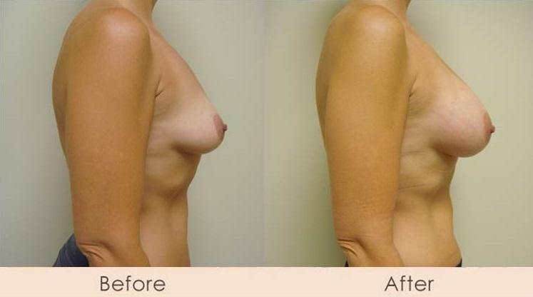 Scarless Breast Enlargement