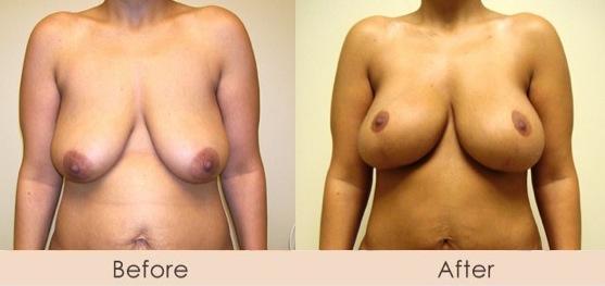 Breast Augmentation (Endobam) 300-340cc saline implants under muscle<br />External Ultrasonic Liposuction of Abdomen & Waist<br />Mini Tuck Abdomen