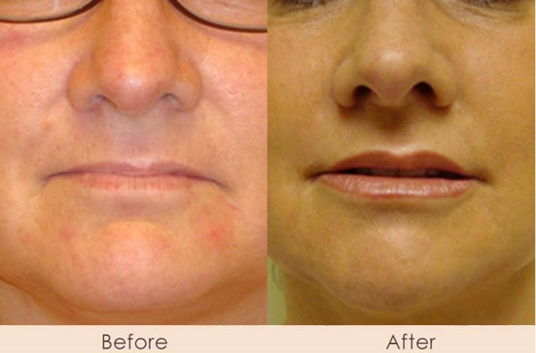 Alloderm to Marionette and Nasal Folds