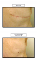 therascr photo back scar