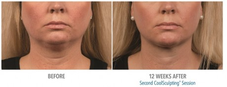 Double Chin Coolsculpting 01
